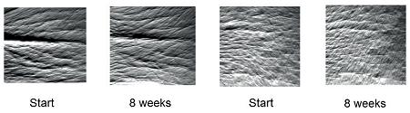 """Изображение отпечатков """"гусиных лапок"""" двух женщин перед началом исследования (Start) и через 8 недель (8 weeks)."""