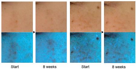 Фото пигментных пятен двух женщин в обычном (вверху) и УФ-свете перед началом исследования (Start) и через 8 недель (8 weeks)